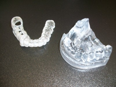 Set of teeth created using 3D printing technology